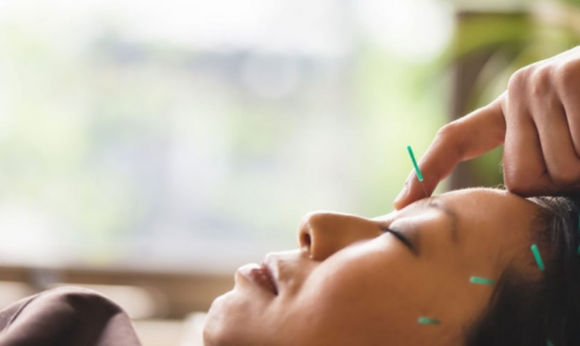 Woman receiving acupuncture treatment on her face.